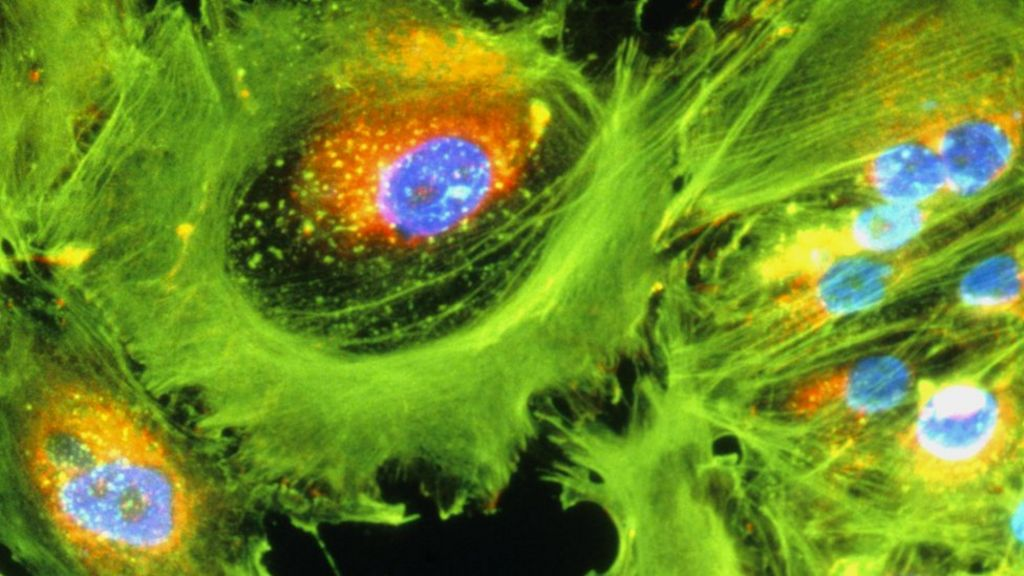 Immunotherapy cancer drug hailed as 'game changer' - BBC News
