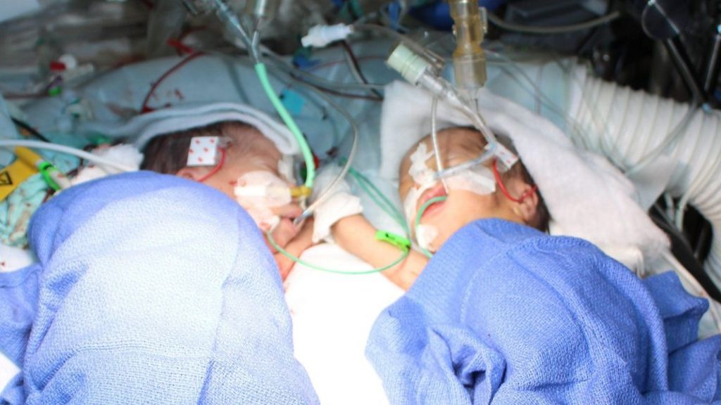 'Youngest' conjoined sisters separated at Swiss hospital in Bern ...