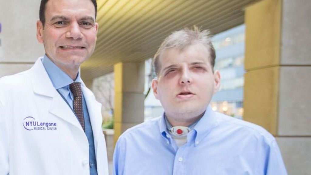US firefighter has world's most extensive face transplant - BBC News