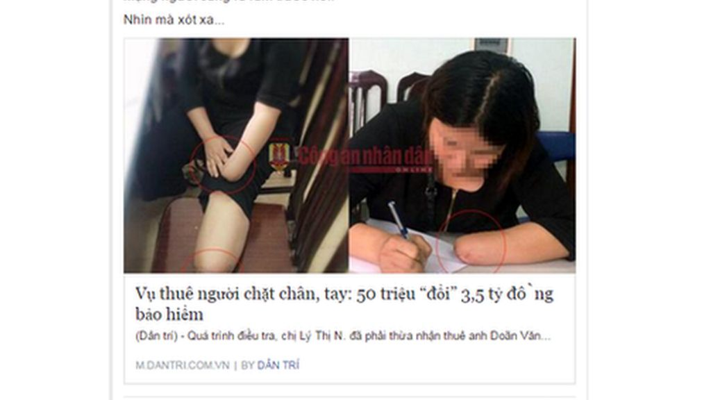 Zerchoo News - Vietnam woman 'cuts off limbs for insurance