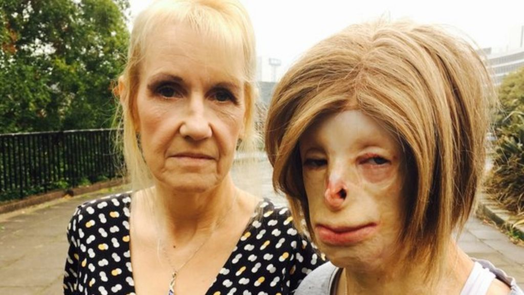Terri calvesbert badly burned teen fights cyber bullies bbc news