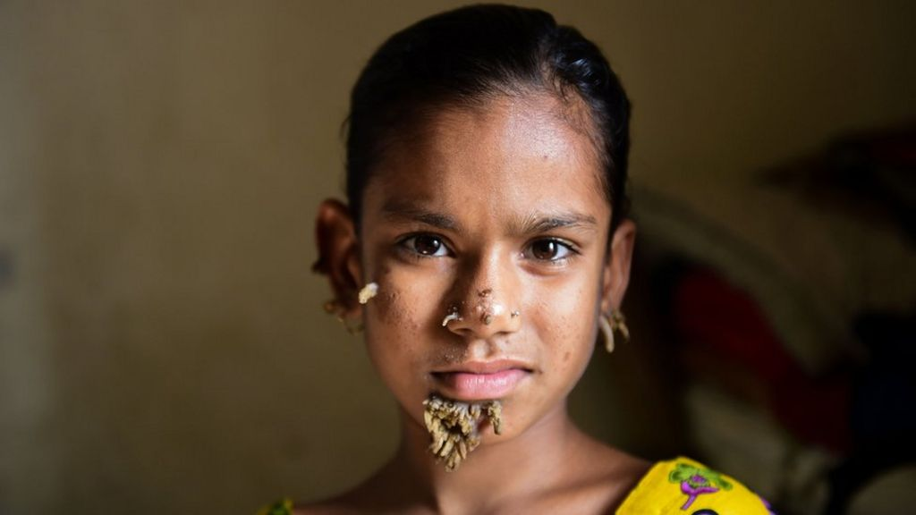 Bangladeshi girl may be first female with 'tree man syndrome' - BBC News