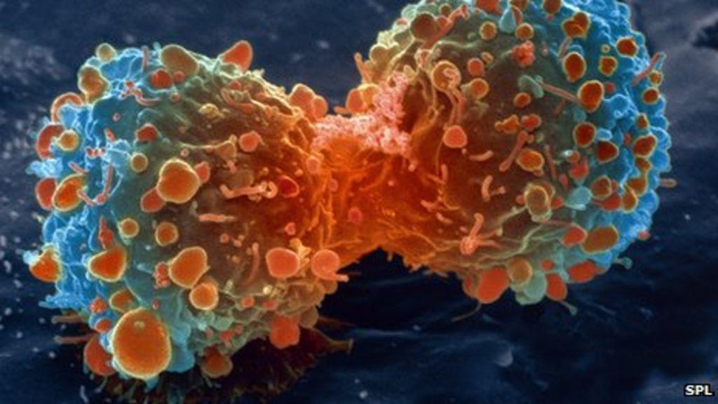 Genomic test breast cancer
