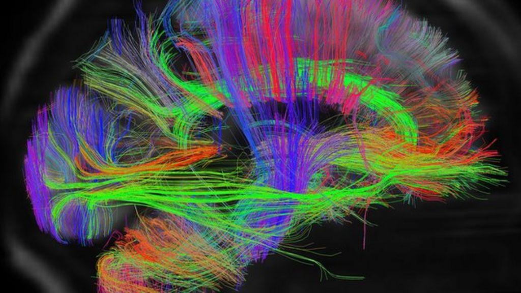 Artists 'have structurally different brains' - BBC News