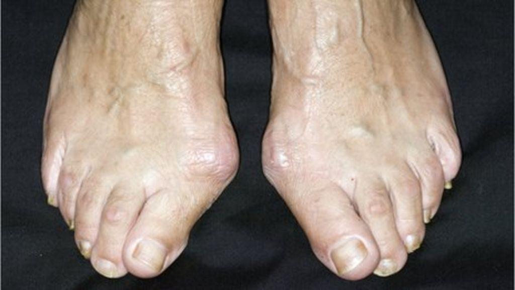 Shoes Hurt My Pinky Toe