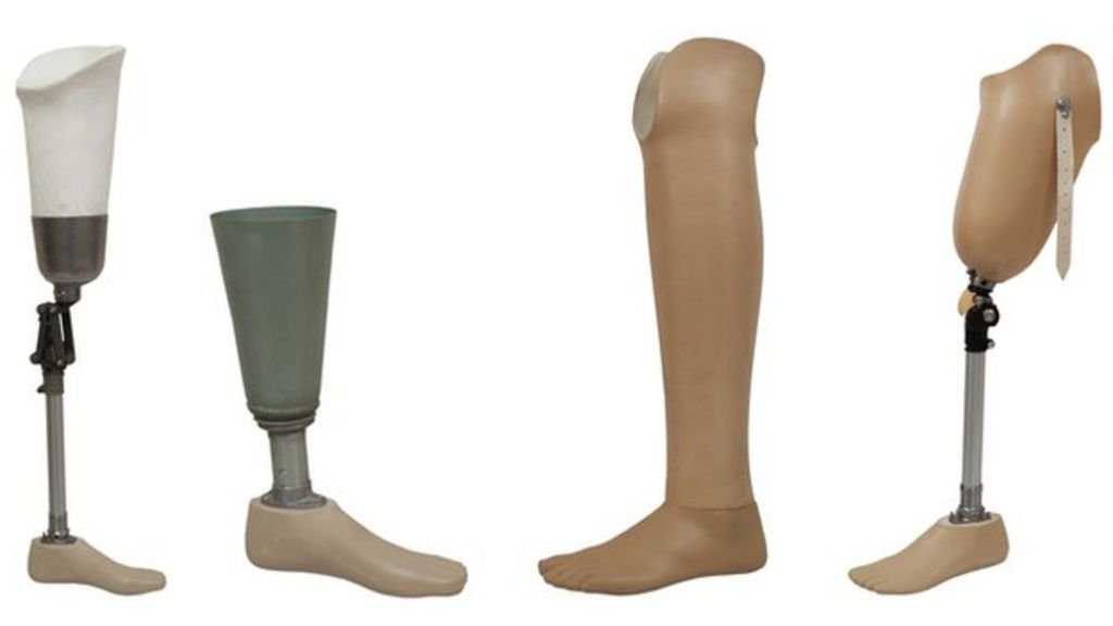 blog prothesis Posts about prosthesis written by toothdude toothdude's blog accept your past without regrets, handle your present with confidence and face your future without fear.