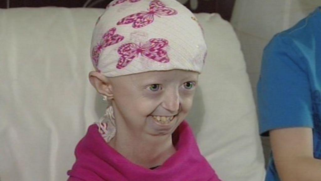 Progeria campaigner Hayley Okines dies aged 17 - BBC News  Progeria campai...