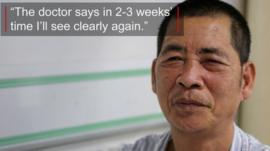 Eye patient - Wu Pinggui