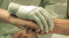 Milo being fitted for a bionic hand
