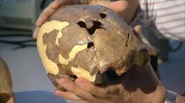 13,000-year-old skull