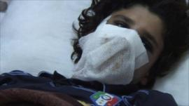 A casualty of Sirte, taken to Misrata for treatment