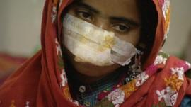 Victim of domestic violence in Pakistan.