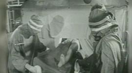Black and white archive footage of hip replacement operation