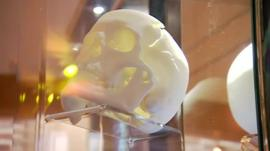Replica skull of Richard III