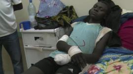 Mali child who lost a hand