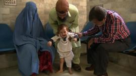 A child suffering from polio because of a lack of access to a vaccine