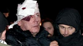 Yuriy Lutsenko injured in Kiev, 10 January