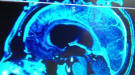 Brain tumour scan