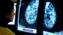 Consultant analyzing a mammogram