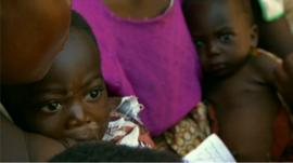 Malawian child in need of medical aid