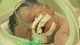 Baby delivered from mother's dead body