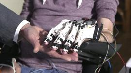 Dom Lovett with his bionic hand