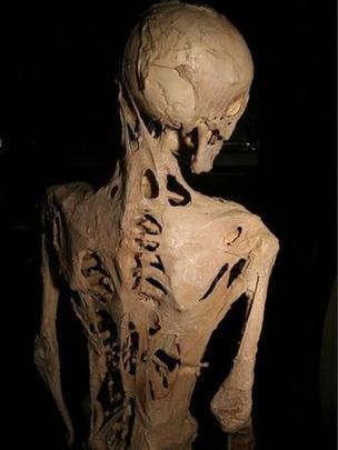 Esqueleto de una persona con fibrodisplasia osificante progresiva (FOP).
