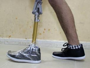 Asem trying on his artificial limb