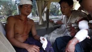 Two injured Rakhine men sit in a car as they prepare to go to hospital