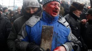 A man reacts after he was injured during a rally held by pro-European protesters in Kiev on Wednesday