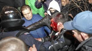 Police escort a wounded participant of an anti-war rally during clashes with pro-Russia demonstrators in Donetsk (13 March 2014)