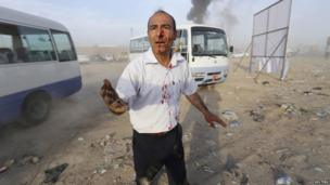 A man wounded after a car bomb attack during a Shia political organisation's rally at the site in Baghdad on 25 April 2014.
