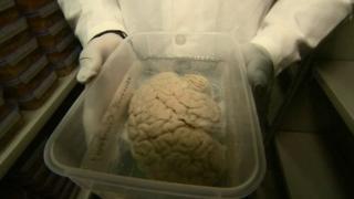 انسانی دماغ