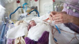 Premature baby in incubator