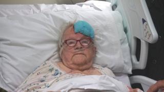 397ed38fe62c Baby Lynlee  born twice  after life-saving tumour surgery - BBC News ...