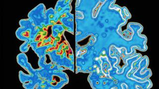 Scan of brain showing Alzheimer's vs normal