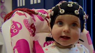 Baby with a brain scan cap