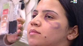 The show Sabahiyat, broadcast on Morocco TV channel 2M, advises women how to hide bruising with make-up