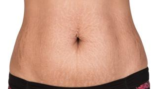 _93772988_estrias_barriga_thinkstockphot