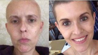 Pictures of Liz Sheppard, who has been crowdfunding treatment for cancer