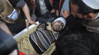 Pakistani paramedics transport a bomb blast victim to a hospital in Peshawar on December 29, 2015.