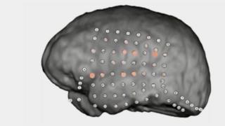 Patterns of activity on animated human brain undergoing auditory test