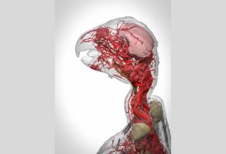 Blood vessels of the African grey parrot