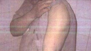 Unknown detainee shows his arm in undated photo released by the Pentagon on 5 February 2016