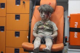 Halep'teki bir hava saldırısının ardından enkaz altından çıkartılan beş yaşındaki Ümran Dakneş'in bu fotoğrafı, tüm dünyada yankı uyandırdı.