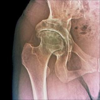 A hip with osteoarthritis