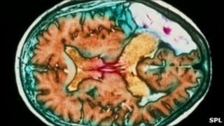Brain scan showing a stroke