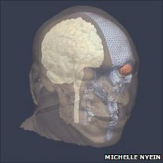 Simulated skull (Michelle Nyein)