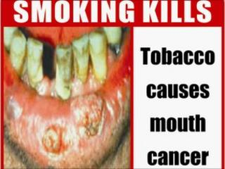 The health ministry's pictorial warning