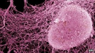 Cancer cell spreading